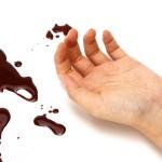 「出血」って英語で言うと?Part1